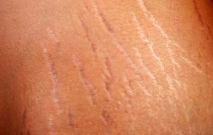 Stretch Marks On The Body